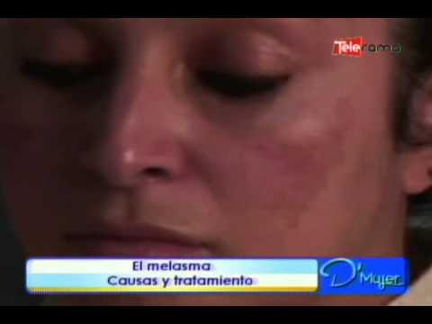 El melasma causas y tratamiento