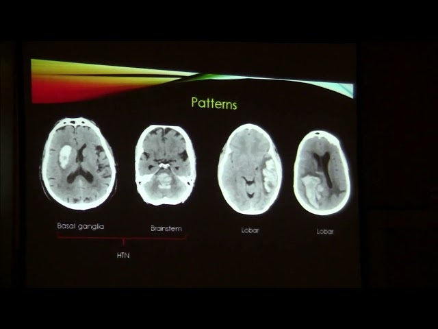 Hemorrhagic stroke. Camilo Jaimes Cobos