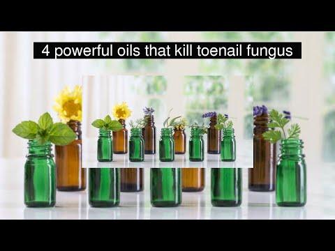 4-powerful-oils-that-kill-toenail-fungus