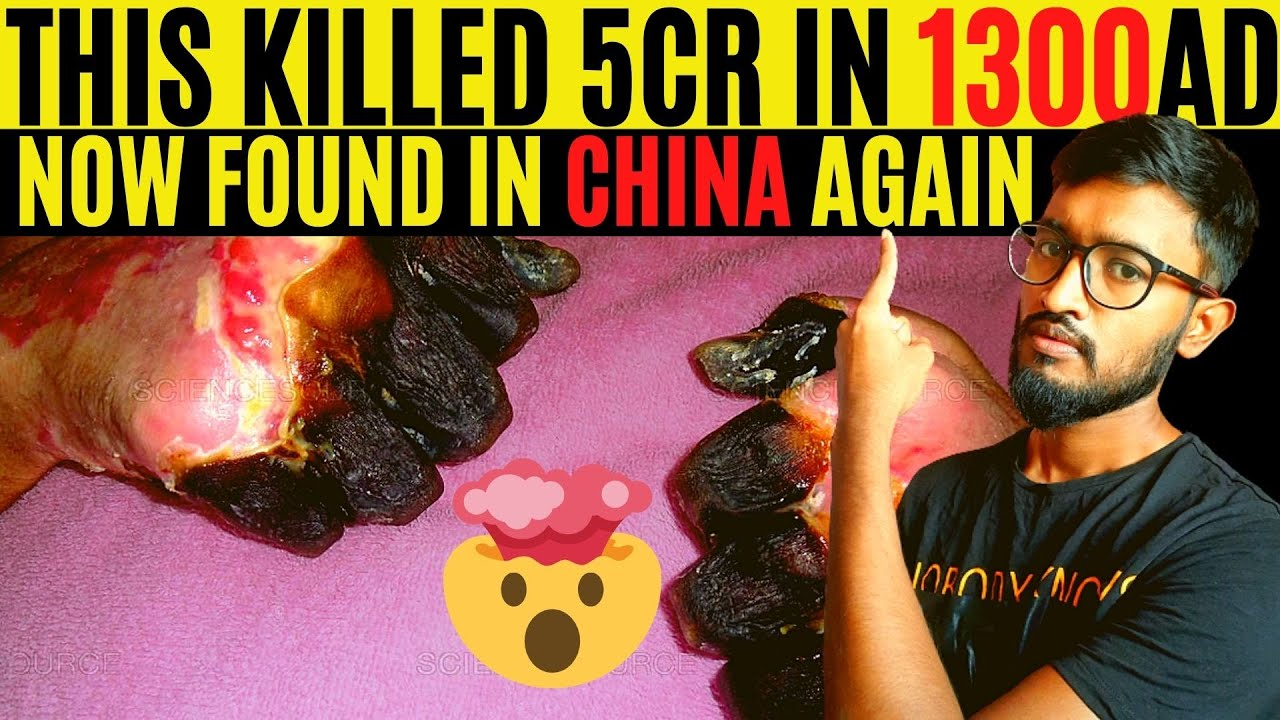 Deadly Disease Bubonic Plague Found in China and Spreading ...