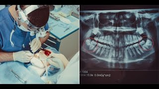 Удаление зуба мудрости. Операция по удалению ретиннированых зубов мудрости.(, 2016-02-25T19:21:30.000Z)