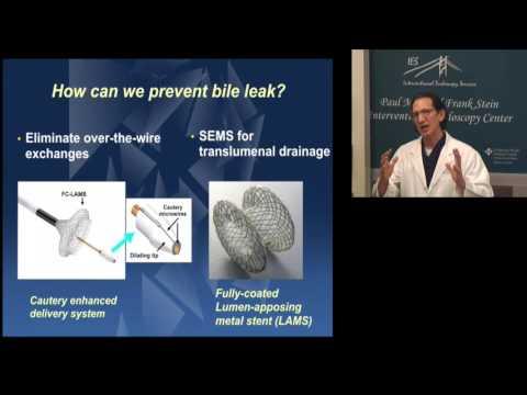 Harbor UCLA Symposium 2016: EUS-guided GB drainage (Lecture)