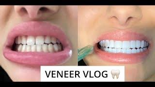VENEER VLOG🦷🦷  (NO DAMAGE TO REAL TEETH)