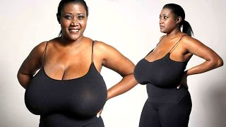 Woman's Bosom Keeps Growing To 36NNN – Rare Condition