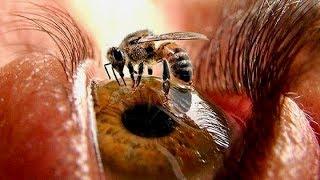 10 Bizarre Phobias
