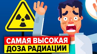 Человек получил передозировку радиационного излучения – вот что с ним стало.