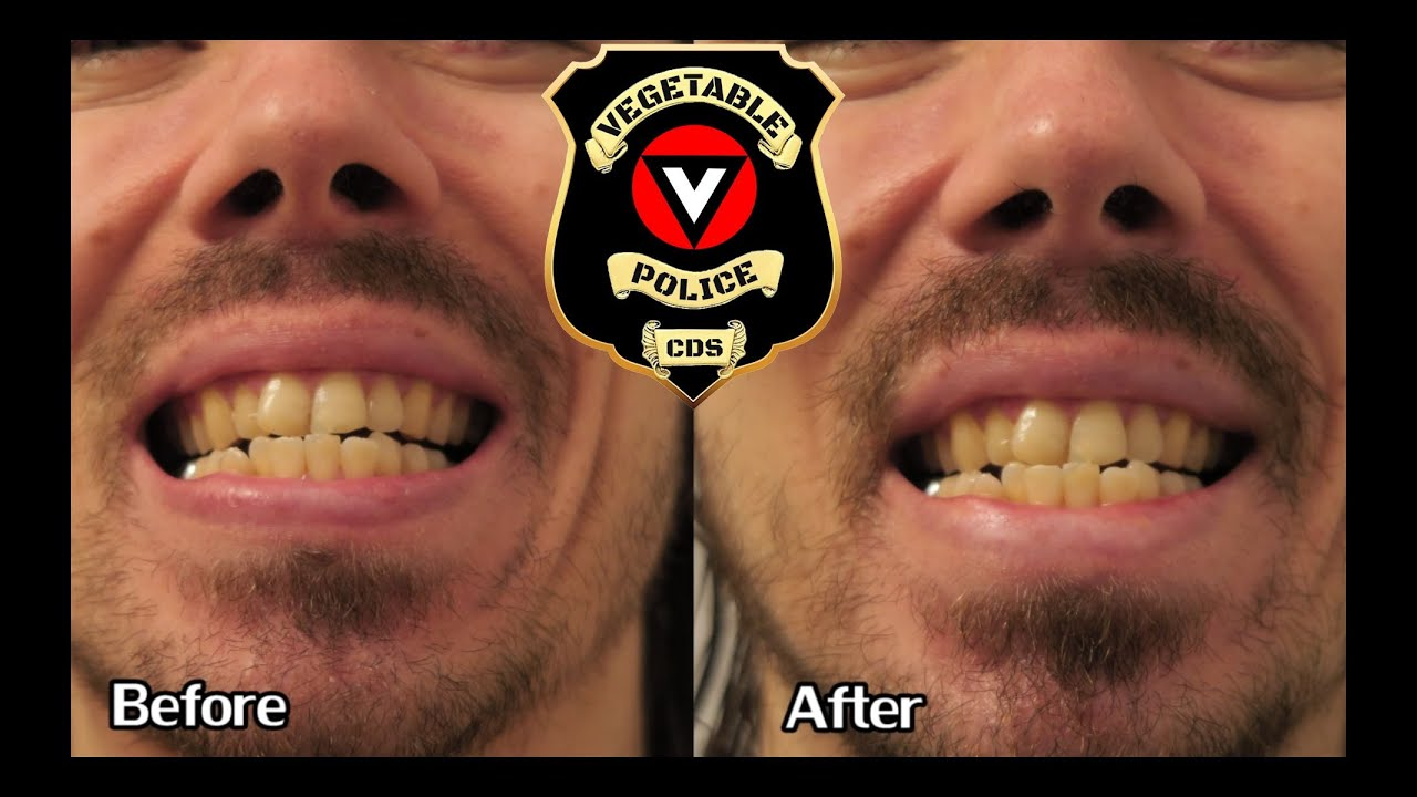 7 Day Teeth Whitening Experiment Before And After With Turmeric