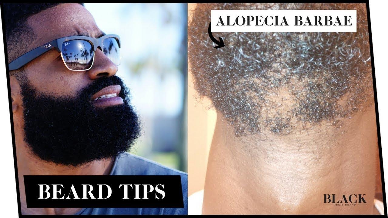 alopecia barbae