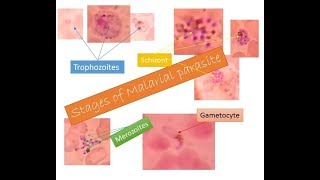 Malarial parasites identification within two minutes | Trophozoite| Schizont| Gametocyte| Merozoite