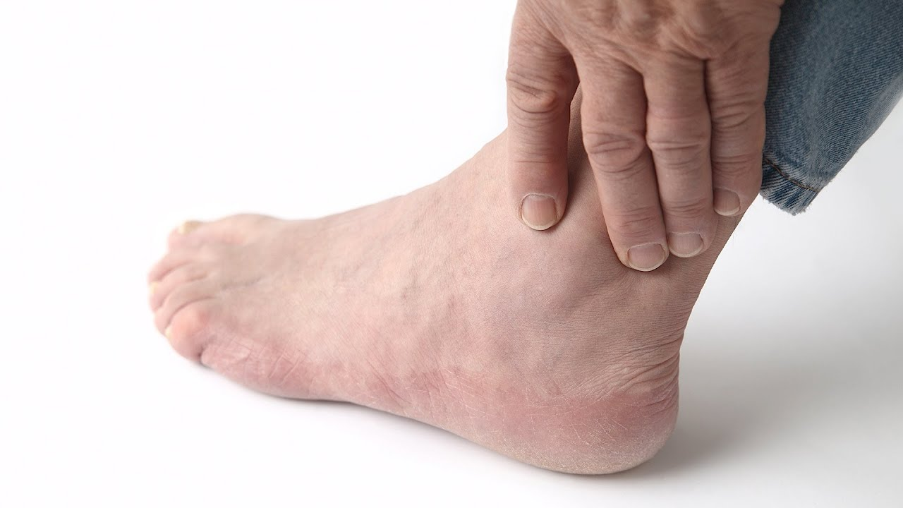 how to recognize gout symptoms foot care [ 1280 x 720 Pixel ]