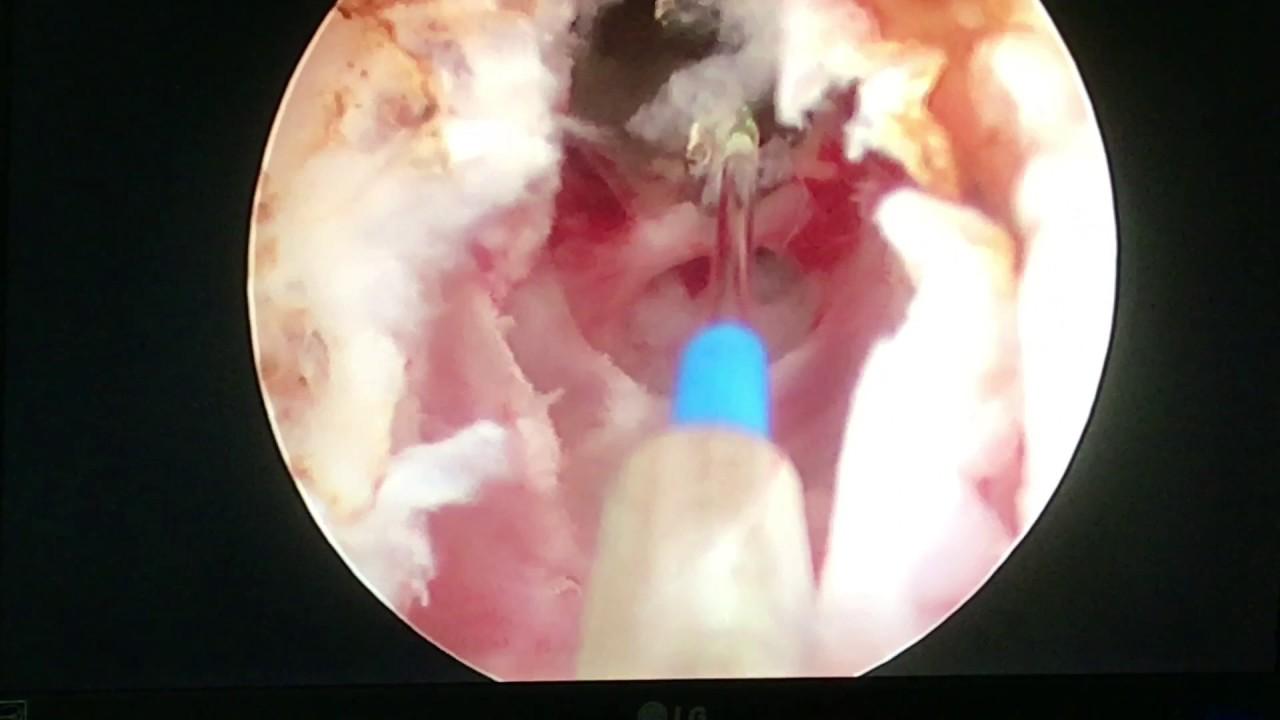 Urethrotomy Internal - Thulium Laser-Dimitar Mateev M.D ...