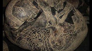 Изображение сложнейших хирургических операций на древних камнях.