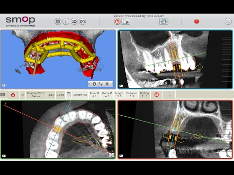 SMOP Guided Implant Surgery with Dr Adam Nulty