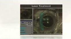 Lasik Eye Surgery Fort Lauderdale Miami Beach, FL 33139  (954) 458-2112 - Call Now!