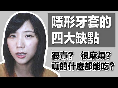 隱形牙套的優點v.s缺點,我戴SOV三個月心得分享【透明牙套日記ep2】 林宣 Xuan Lin @ 林宣 Xuan Lin :: 痞客邦