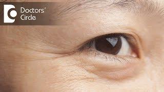 How can one avoid fine lines near eyes? - Dr. Aruna Prasad