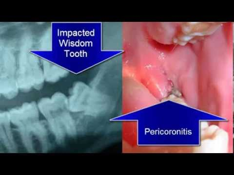 Infected Wisdom Tooth and Pericoronitis