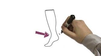 Napra-Rehab / Miksi sinun tulisi käyttää tukisukkia
