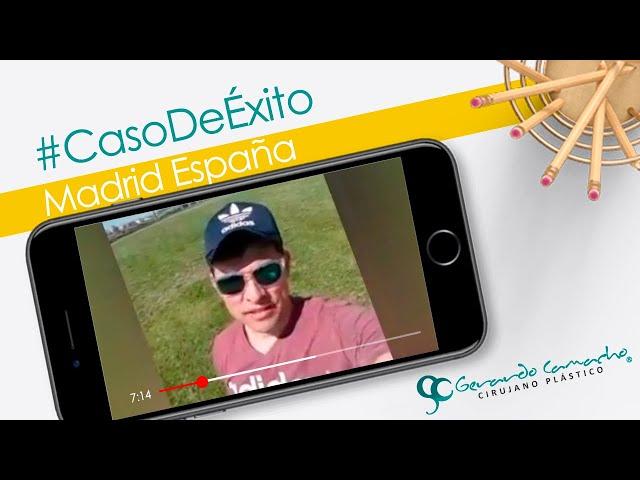 Testimonio Paciente Cirugía plástica ESPAÑA