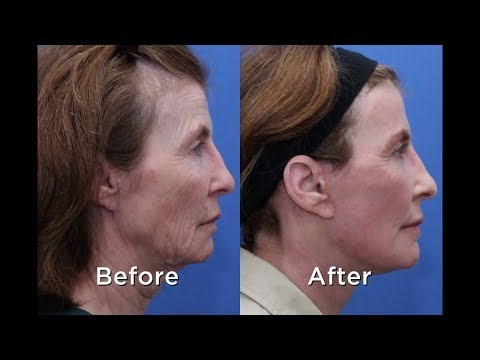 Facelifts with the only Double Board Certified Facial Plastic Surgeon in Wilmington NC