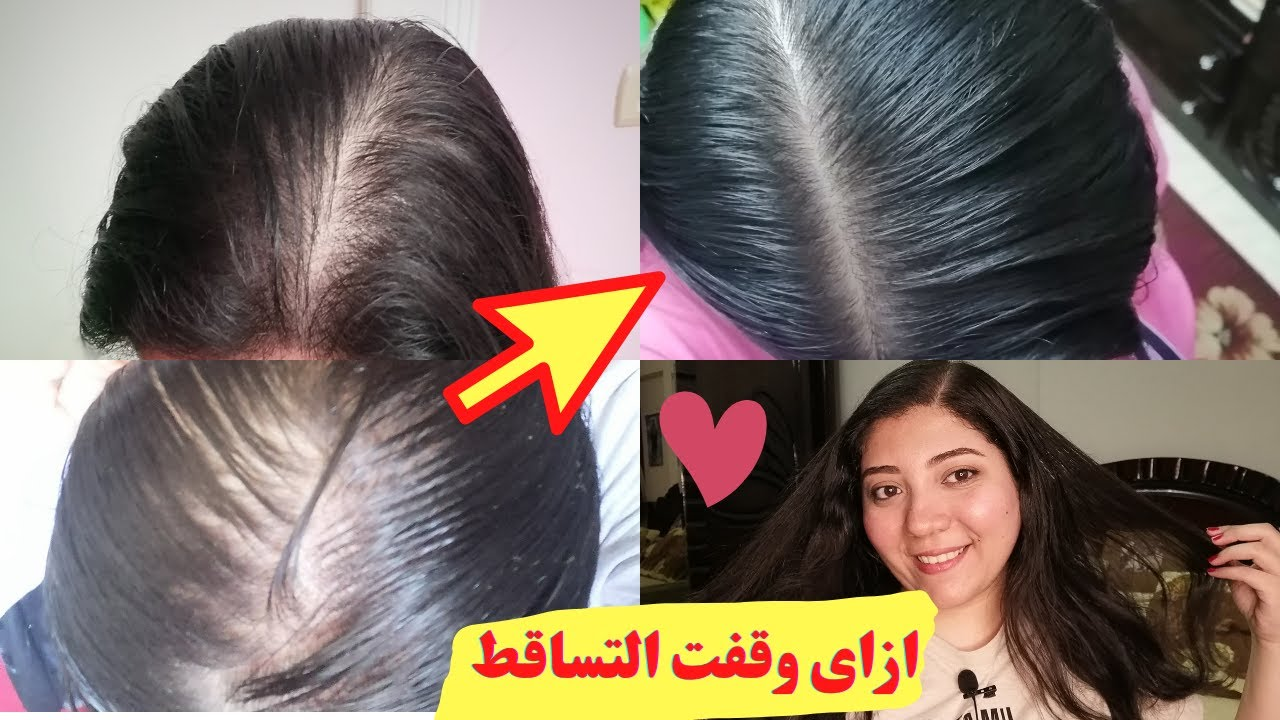 ازاي عالجت تساقط شعري ! منتجات د/ ماري علاج تساقط الشعر  تجربتي بكل أمانة 01227529171 لطلب المنتجات