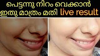 പെട്ടന്നു നിറം വെക്കാൻ ഇതു മാത്രം മതി|permanent skin brightening home naturally|malayalam