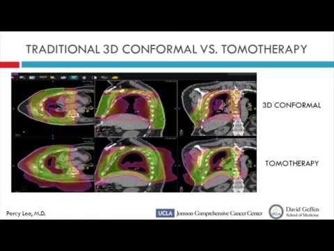 Percy Lee, MD - Postoperative Tomotherapy following Lung-Sparing Surgery for Mesothelioma