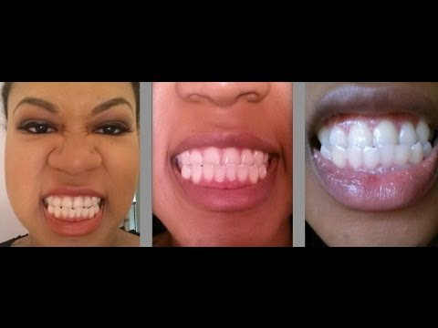 Glo Solo Teeth Whitening Review Demo Youtube