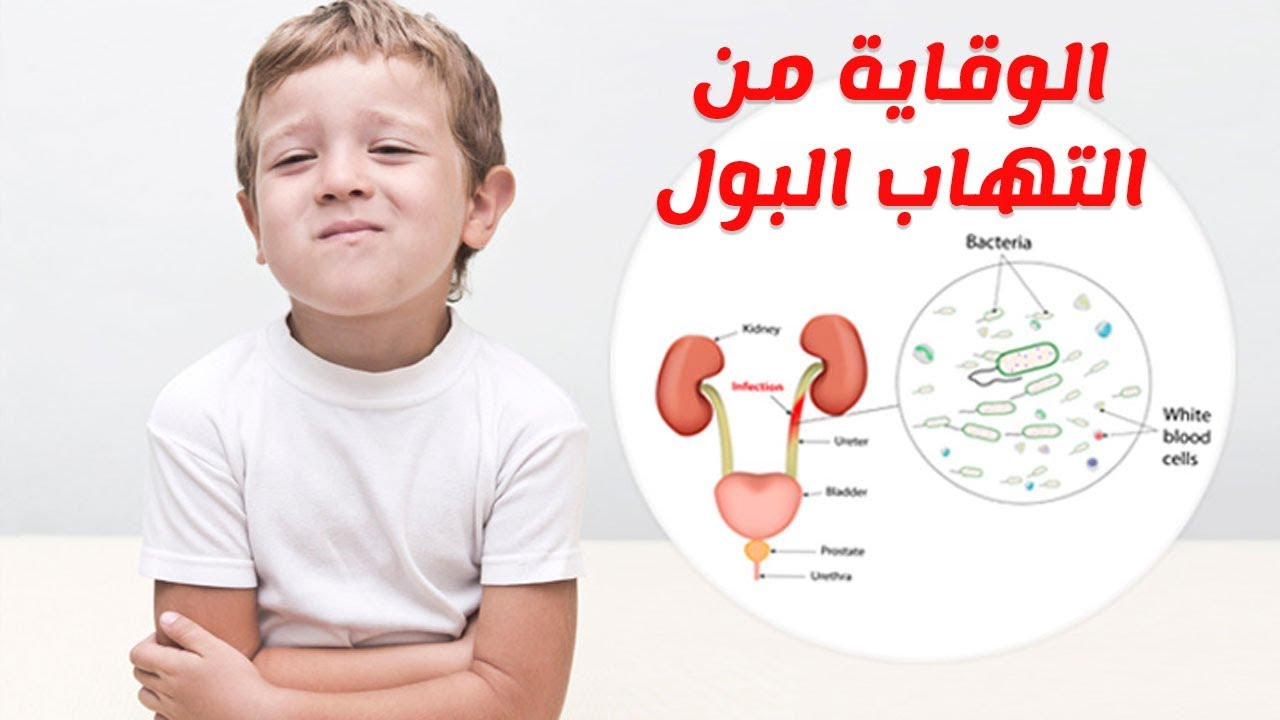 اعراض التهاب البول عند الاطفال والرضع وطرق العلاج والوقاية Youtube