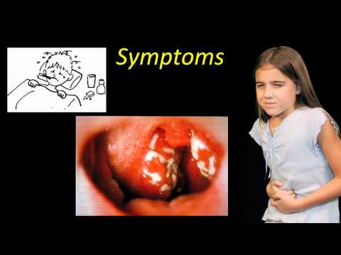 New Strain of Strep Causing Installments of Scarlet Fever
