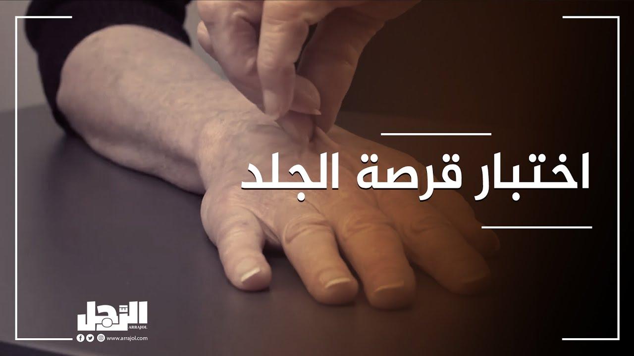 قرصة الجلد.. اختبار يخبرك إذا كنت تعاني من الجفاف