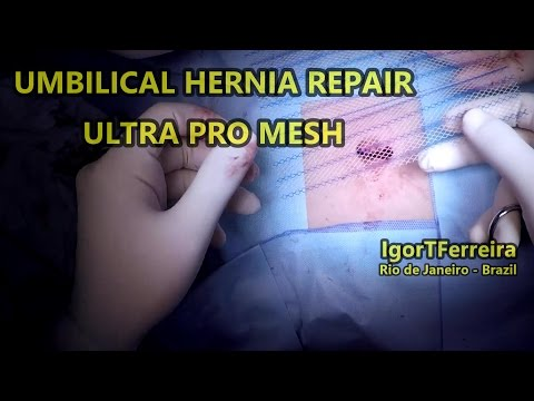 Umbilical Hernia Repair with Mesh - GoPro 1080p