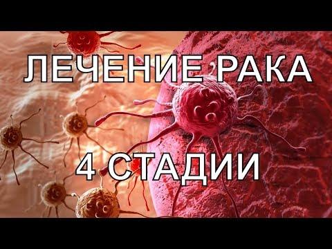 APLGO отзывы. Лечение рака шейки матки 4 стадии. Леденцы APL. Клеточное питание APL