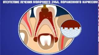 Лечение кариеса молочных зубов(, 2016-11-03T15:45:15.000Z)
