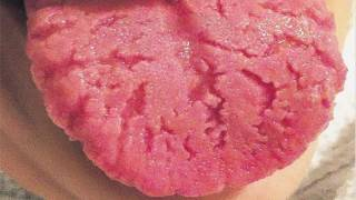 Geographic tongue Pictures/Images in Men and women