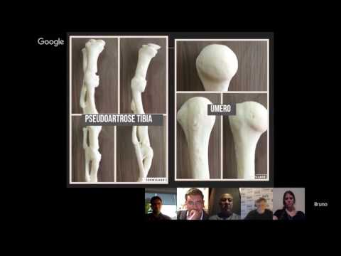 Bruno Gobbato MD Orthopedist and 3d Printing Enthusiast