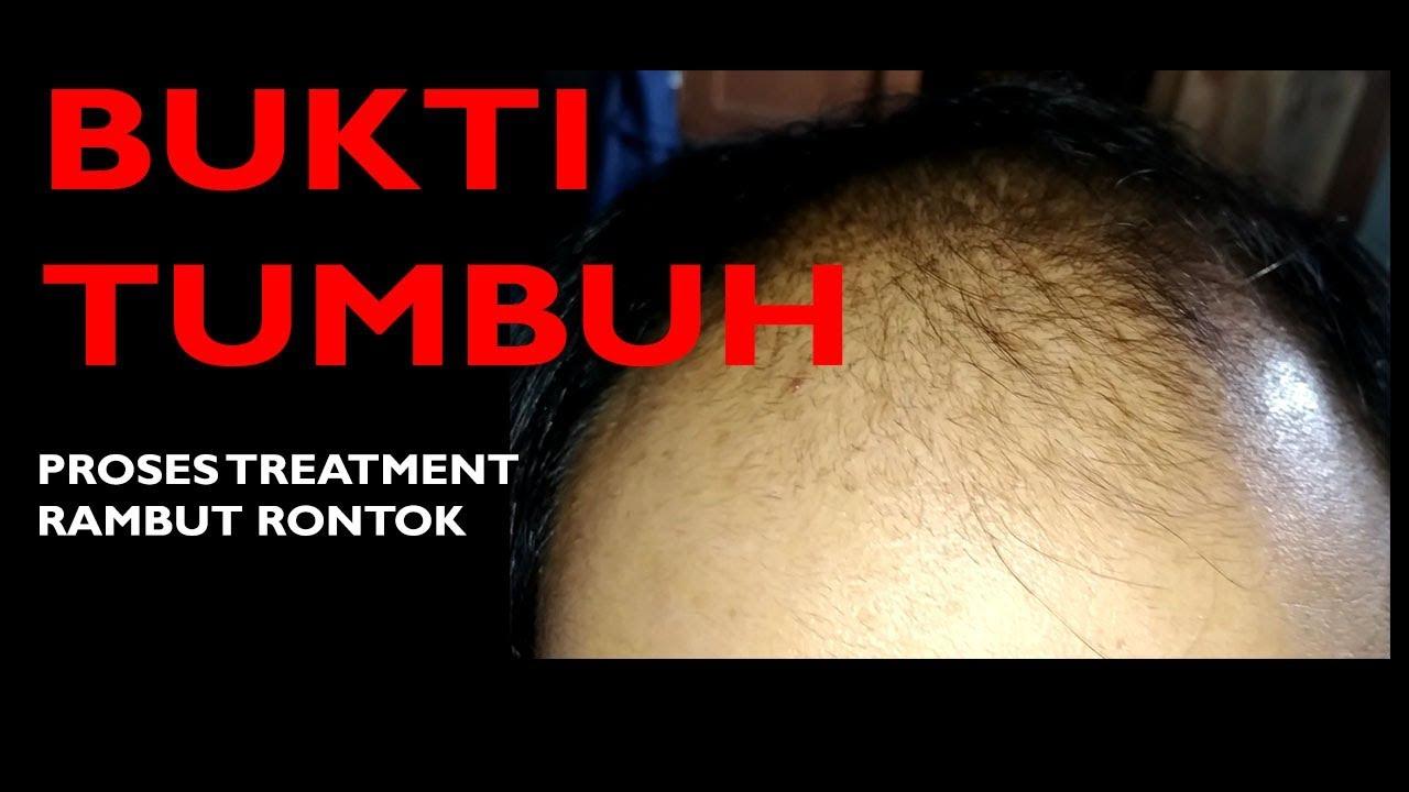 Pemakaian Serum Penumbuh Rambut Yang Ampuh Tanpa Minoxidil Dalam 1 Bulan