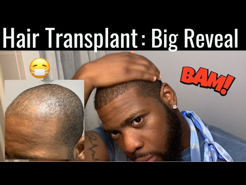 hair-transplant-truth-|-5.5-month-update-fue|-52-week-update|-haircut-time-lapse-|monday-motivation
