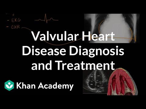 Valvular Heart Disease Diagnosis And Treatment   NCLEX-RN   Khan Academy
