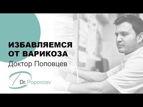 Доктор Поповцев. Избавляемся от варикоза