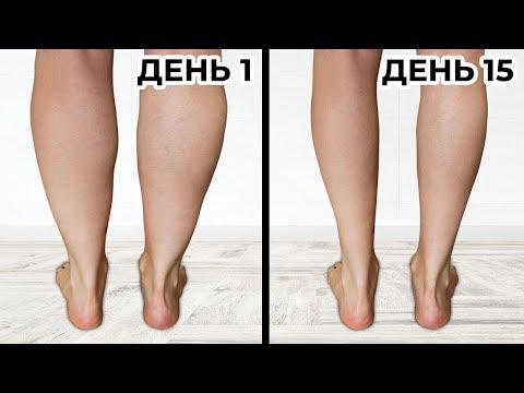 Как можно уменьшить икры на ногах в домашних условиях