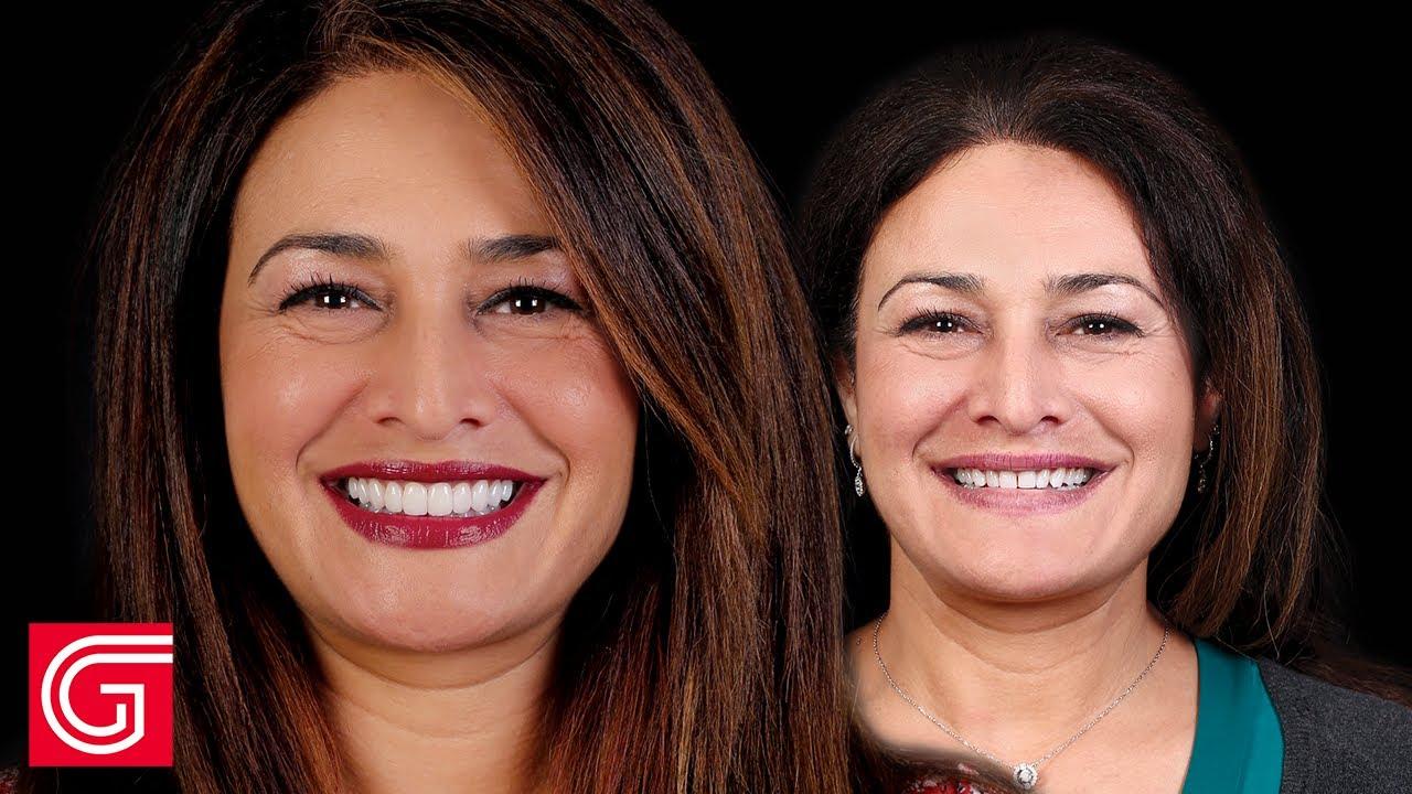 Discover more Regarding Aesthetic Dentistry in Arizona hq720