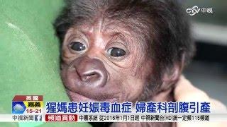 猩媽患妊娠毒血症 婦產科剖腹引產│中視新聞20160225