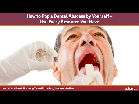 How to Pop a Dental Abscess by Yourself - Use Every Resource You Have