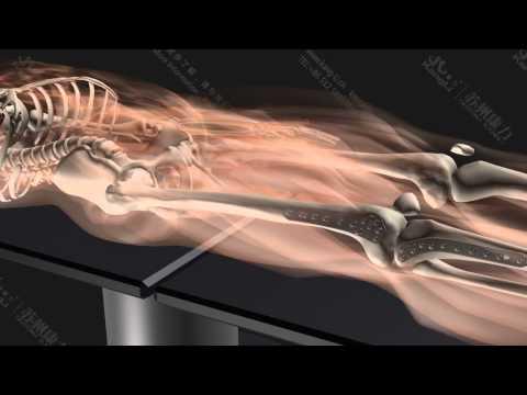 Introduce for suzhou kangli orthopedics instrument company~