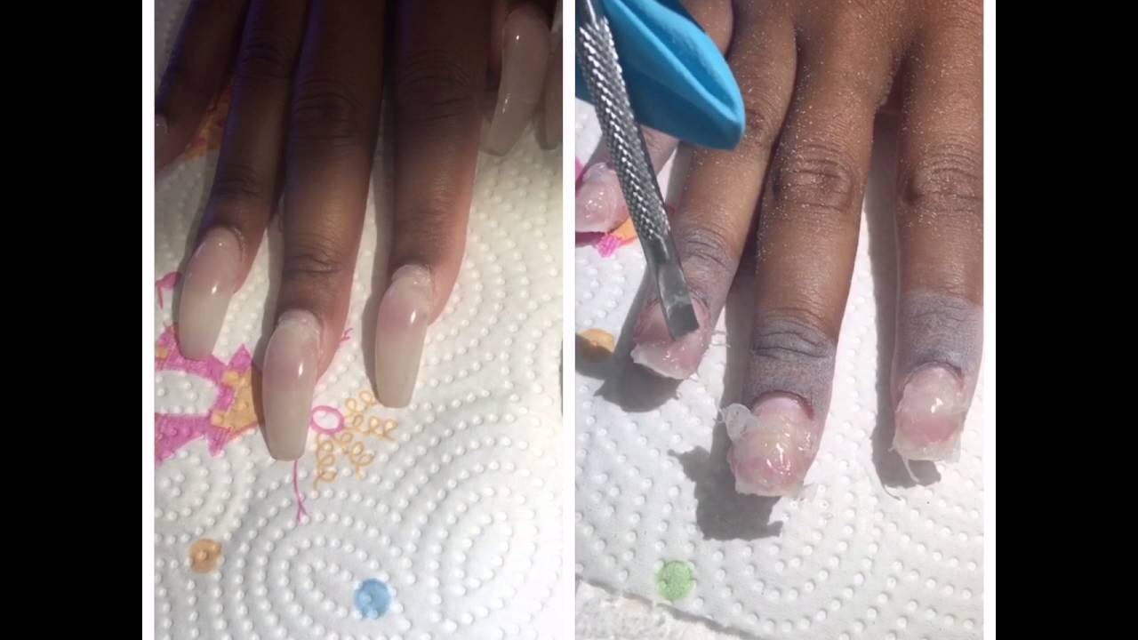 Illegal acrylic nails ( MMA , Google it )