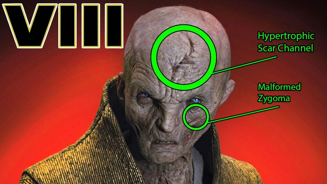 b090747890d6 Snoke s INJURIES and SCARS Explained - Star Wars The Last Jedi Explained