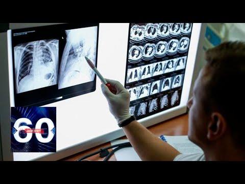 У бессимптомно переболевших коронавирусом пациентов обнаружено поражение легких. 60 минут 09.04.20