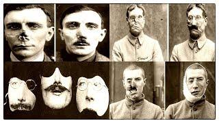Новые лица солдат после 1 мировой войны