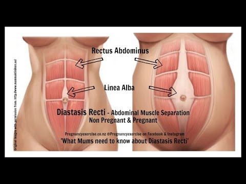 Diastasis Recti Do Your Separated Muscles Have To Close